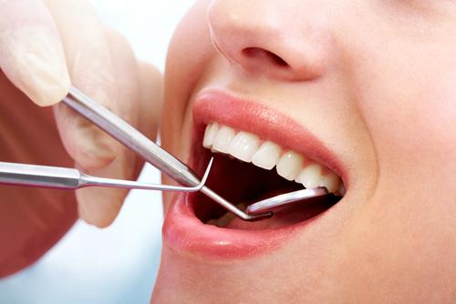 dental-polishing